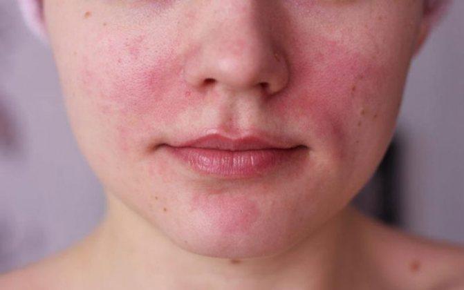 Алергія на електронні сигарети може проявлятися на шкірі в області попадання пара