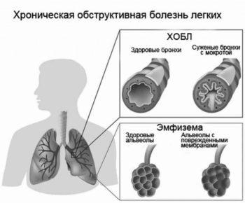 Що таке ХОЗЛ і емфізема легенів