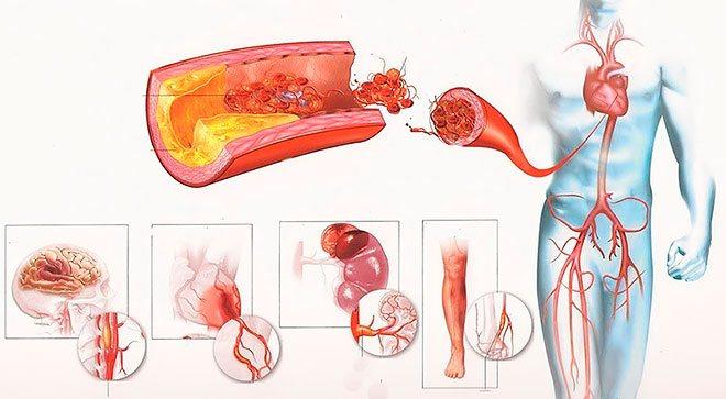 діагностика атеросклерозу