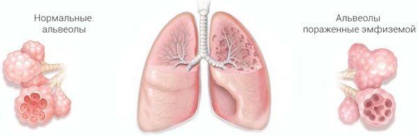 емфізема легенів