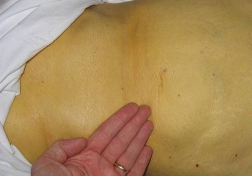 Якщо стара людина пожовтів. Пожовкла шкіра - це гепатит або отруєння. Що робити?