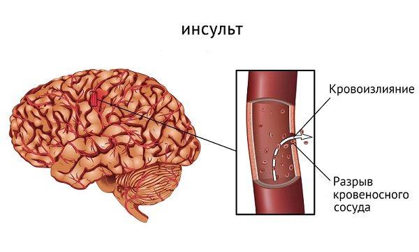 інсульт
