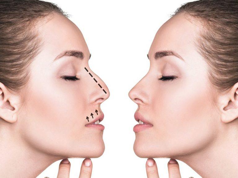 Устранение дефектов носа молодой девушки с помощью ринопластики