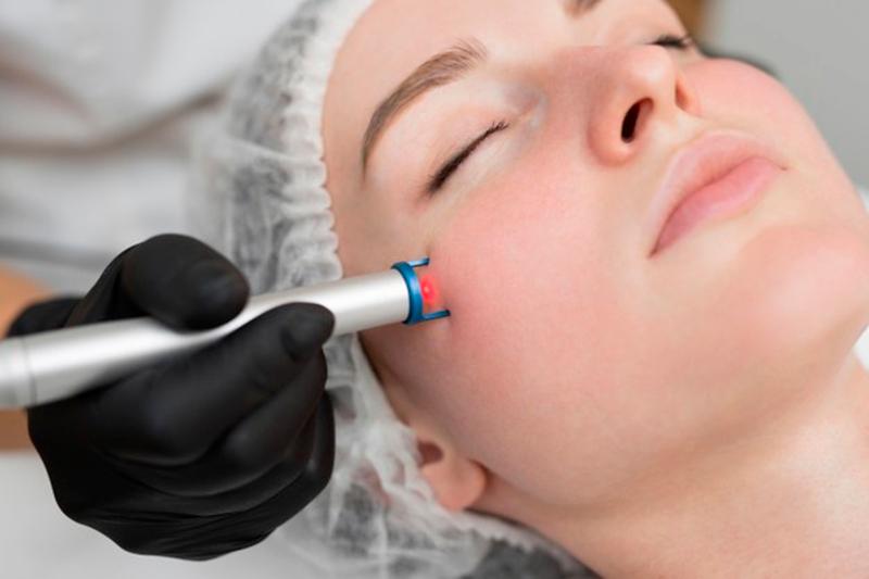 Проведення лазерної терапії шкіри обличчя