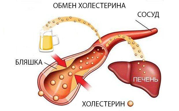 Чи можна алкоголь при холецістіті