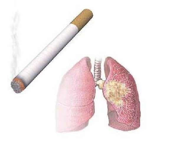 Чи можна курити при бронхіті наслідки від впливу нікотину, поради кращим