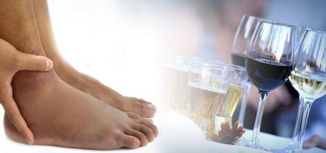 Набряк ніг після алкоголю