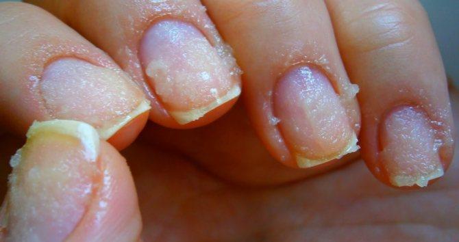 Чому могут пожовтіті пальці