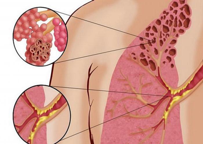 Попкорнового хвороба легенів