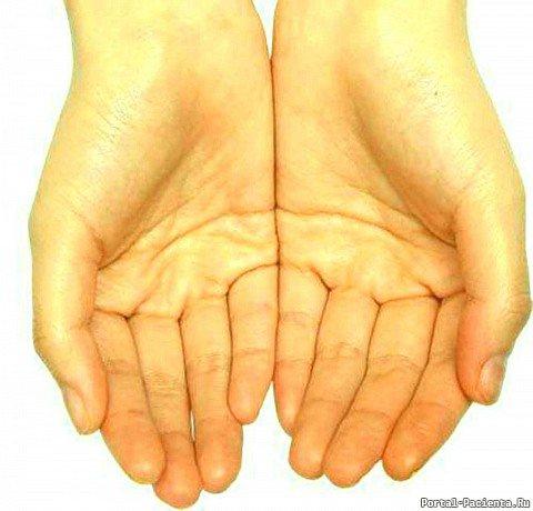 Пожовклі пальці на руках и долоні