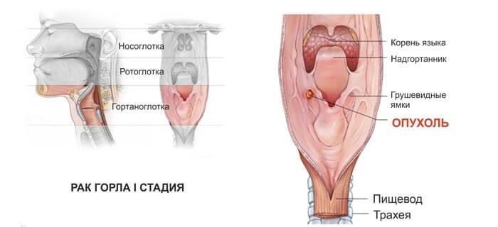 Рак горла курця