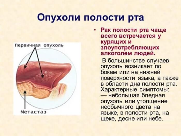 Рак порожнини рота
