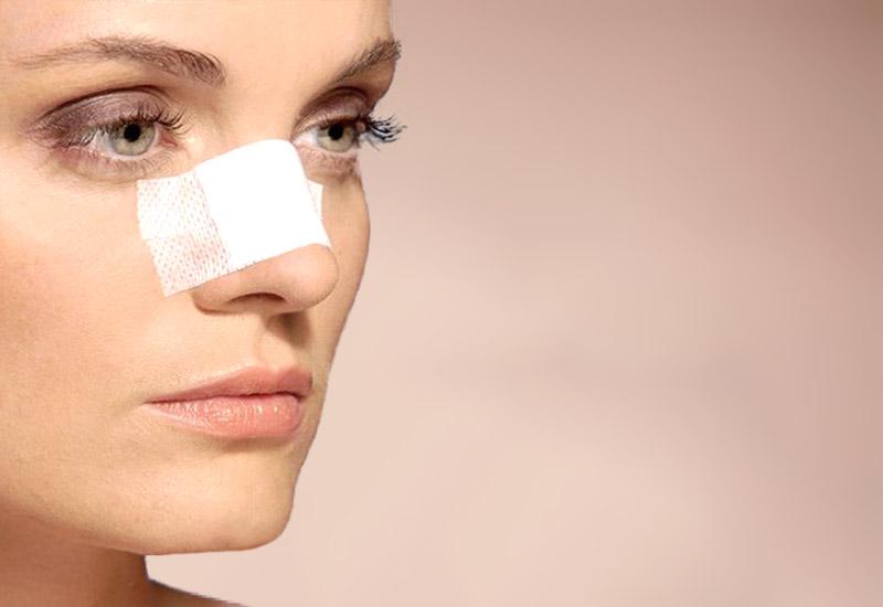 Пациента после устранения горбинки носа