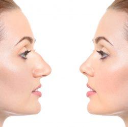 2. Ринопластика горбинки носа