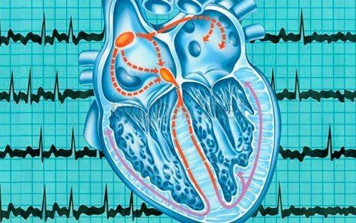 Збій в роботі серця
