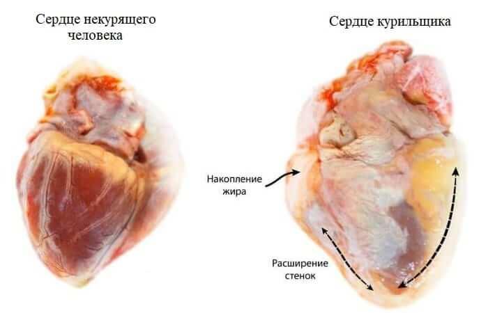 Серце кращого і не палить