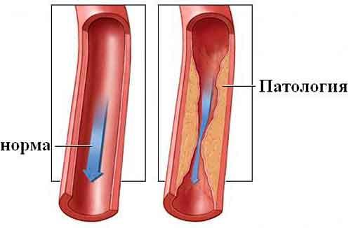 стеноз судин