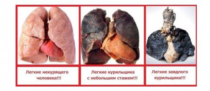 Вплив куріння на легкі