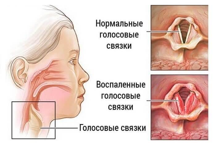 Запалення голосових зв'язок