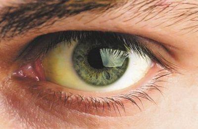 Жовті очі після алкоголю