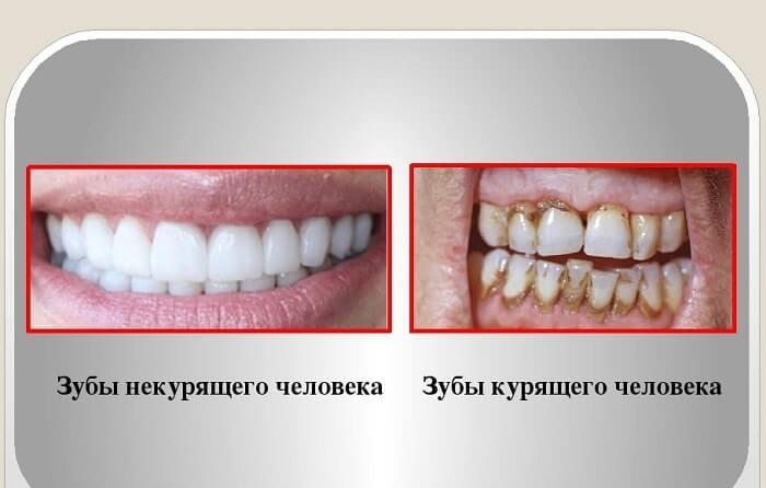 зуби людини